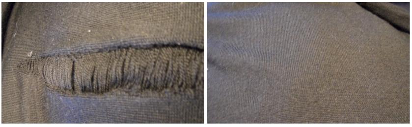 Вживление ткани пиджака