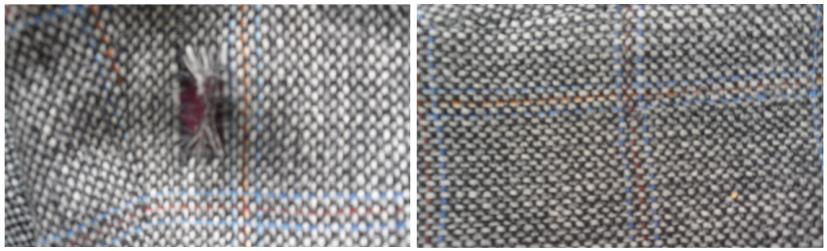 Вживление ткани